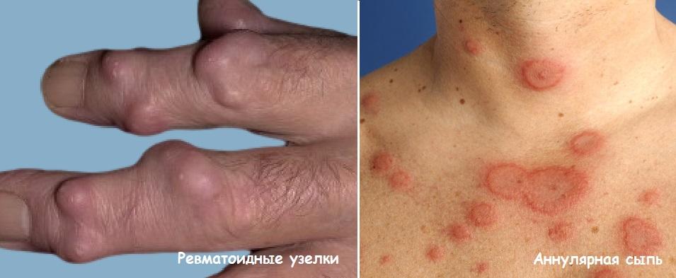 ревматичесие узелки и эритрема
