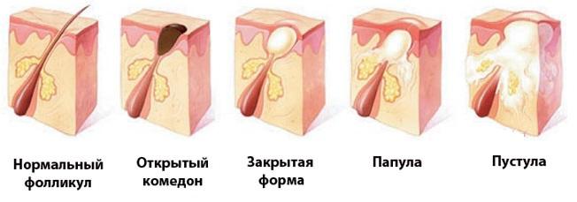 угревая сыпь