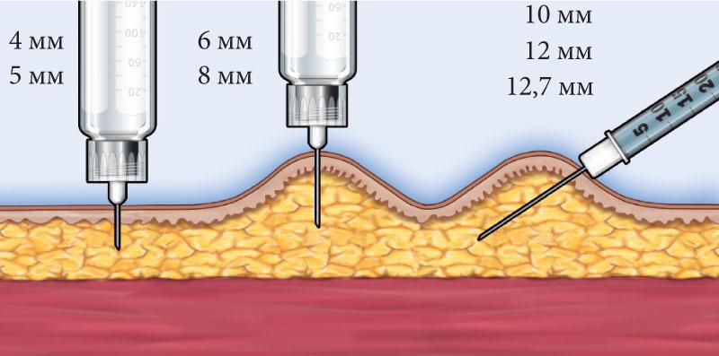 Техника выполнения инъекции у взрослых в зависимости от длины иглы