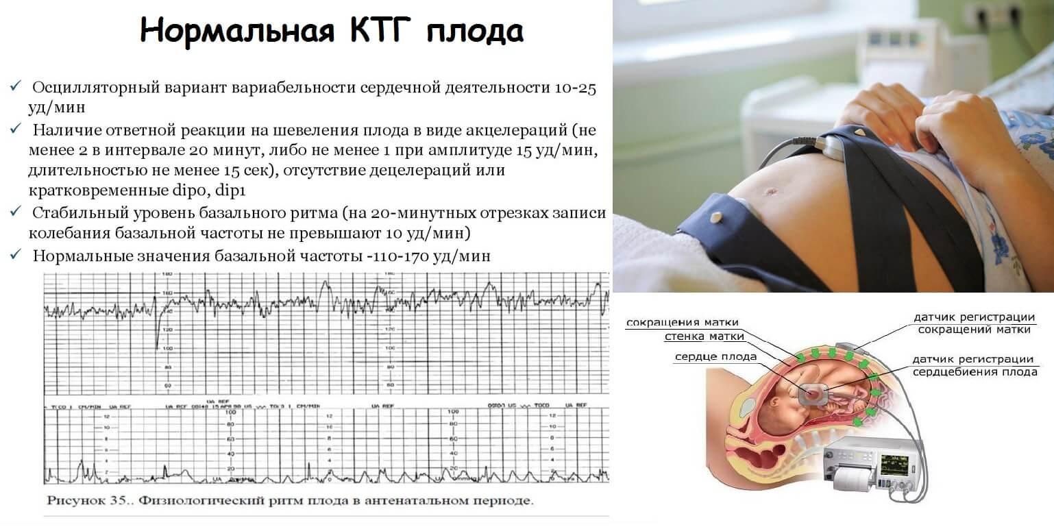 кардиотокография ктг плода