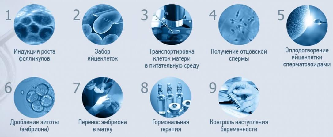 Основные этапы ЭКО