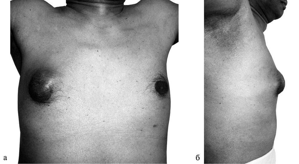 Рак груди у мужчины с уплотнением в правой молочной железе