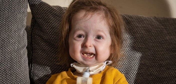 Генетическая мутация превратила 2-летнюю девочку в старушку